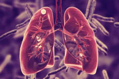Wat is longtuberculose en wat zijn de symptomen?