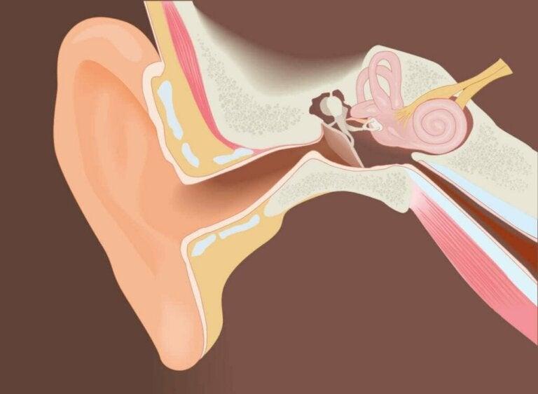 Chirurgische verwijdering van exostosen van de externe gehoorgang