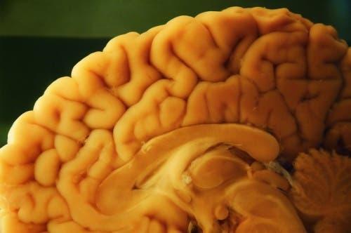 Een autopsie van de hersenen