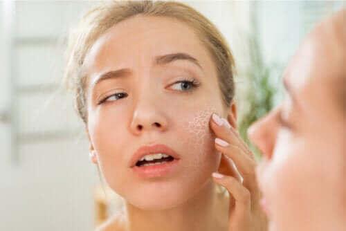 Wat zijn de oorzaken van een droge huid?