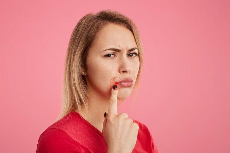 5 manieren om snel koortsblaasjes te verlichten