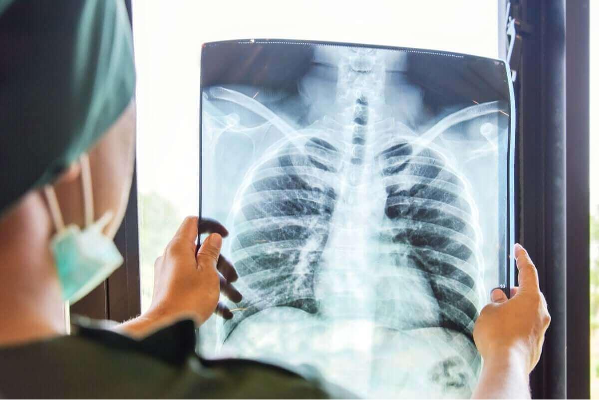 Röntgen van de longen