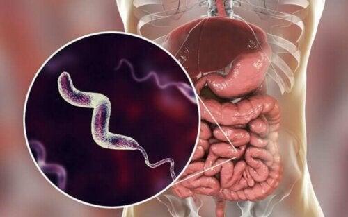 Campylobacter-infecties: alles wat je moet weten