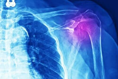 Een röntgenfoto van een schoudergewricht