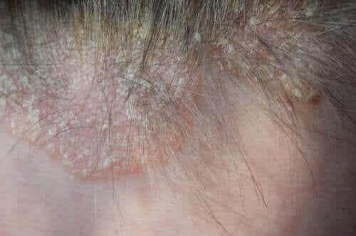 Psoriasis op de hoofdhuid: symptomen en behandeling