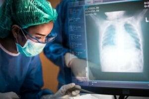 Alles wat je over een longtransplantatie moet weten