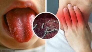 Roodvonk bij kinderen: symptomen en behandelingen