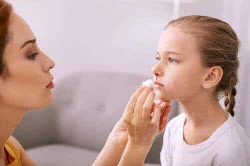 Hoe een bloedneus bij kinderen te behandelen