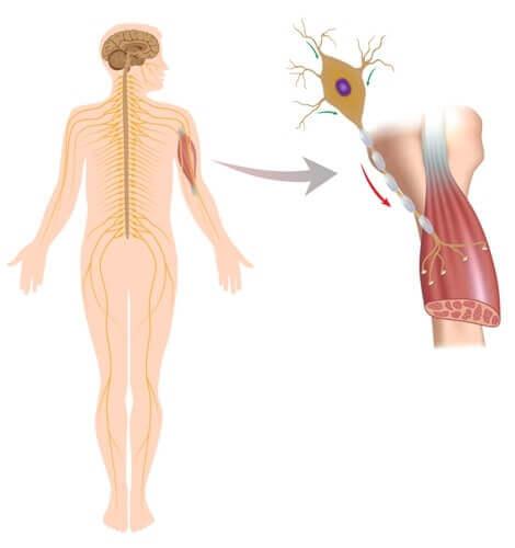 Effect van een neuromusculaire aandoening
