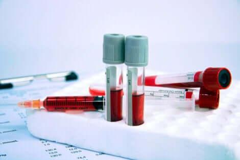 Kunstbloed in reageerbuizen en spuiten