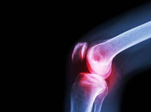 Oorzaken, symptomen en behandeling van septische artritis