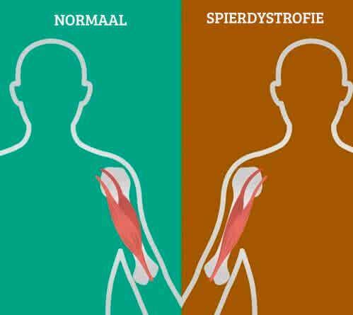 Symptomen van neuromusculaire aandoeningen