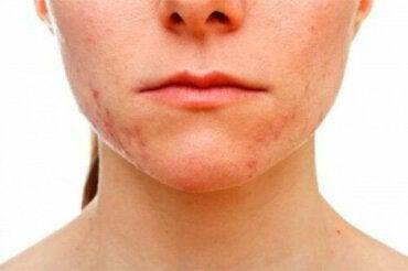 Acne conglobata: oorzaken en symptomen