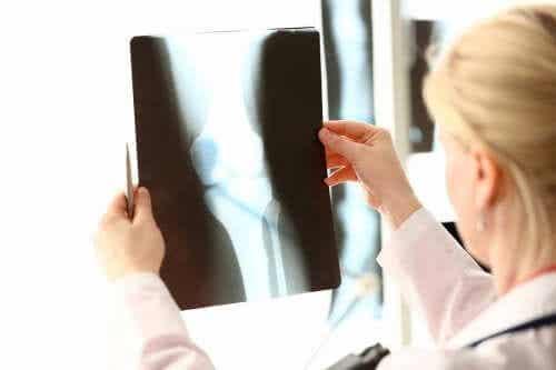 Voeding rijk aan calcium en vitamine D voor gezonde botten