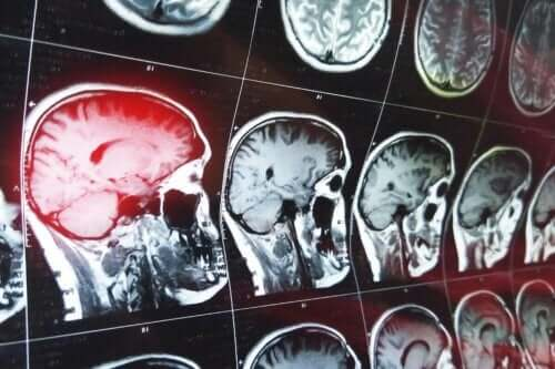 Patiënten kunnen confabuleren na het oplopen van hersenletsel