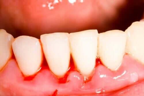 Ontstoken tandvlees is een van de symptomen van een loopgraafmond
