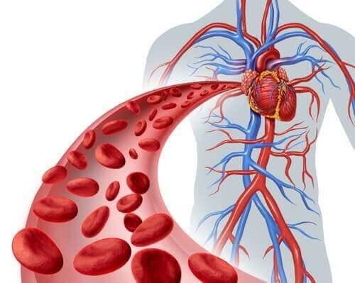 Oorzaken van fibromusculaire dysplasie