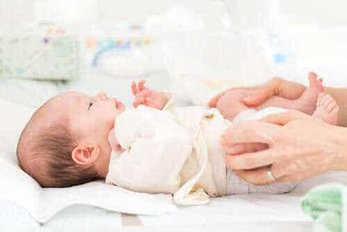 Aangeboren heupdysplasie bij baby's