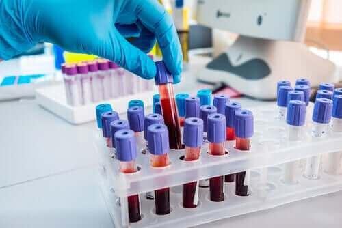 Bloed voor bloedonderzoek