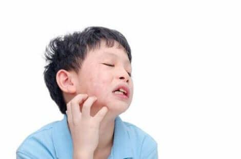 Een kind met kaakpijn