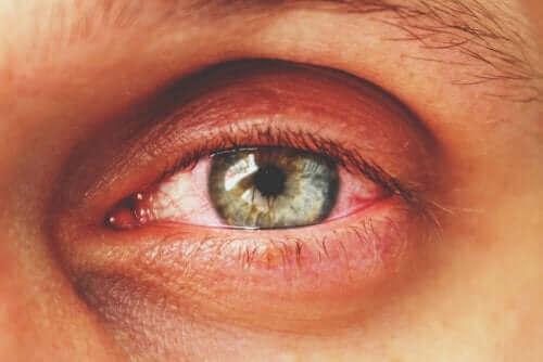 Iemand met een rood oog