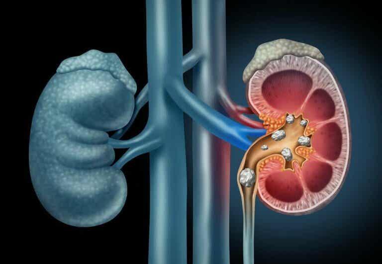 Ontdek het juiste dieet voor nierstenen