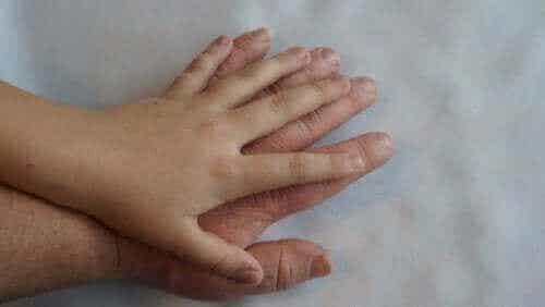 De behandeling en symptomen van acromegalie