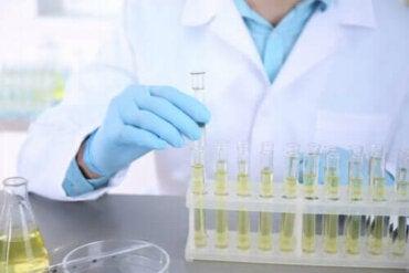 Urinekweek: wat is het en waarvoor wordt het gebruikt?