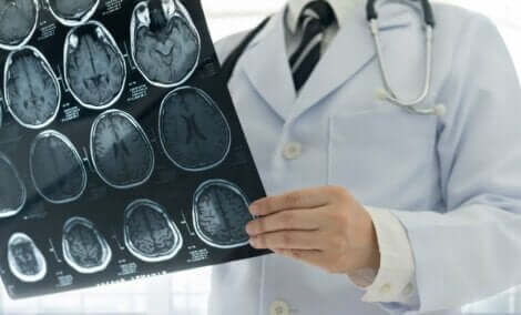 Een arts met een röntgenfoto van hersenen