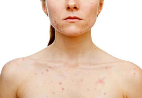 Vrouw met hormonale acne