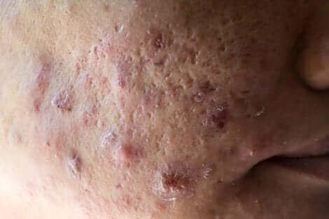 Littekens van hormonale acne