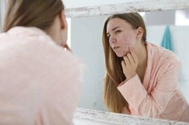 Behandelingsopties en oorzaken van hormonale acne