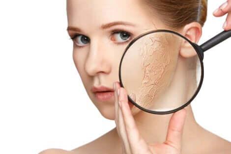 Een droge huid van een vrouw onder een vergrootglas