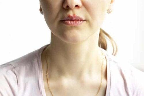 Een vrouw met pemphigus vulgaris