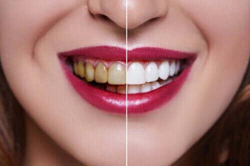 De oorzaken van verkleurde tanden