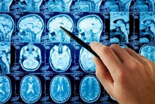 Een MRI-scan