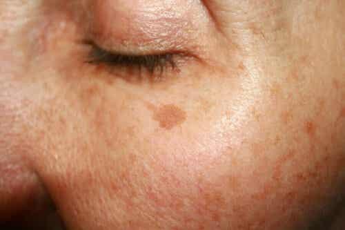 Een vrouw met vlekken op haar huid