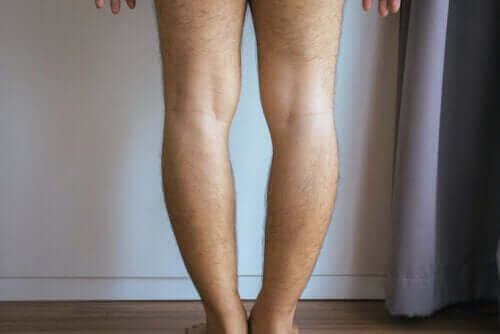 Genu varum of O-benen: oorzaken en behandeling