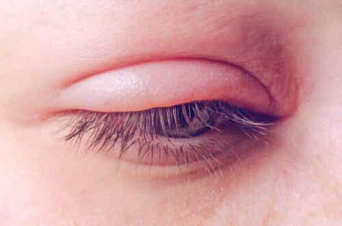 Een dik oog