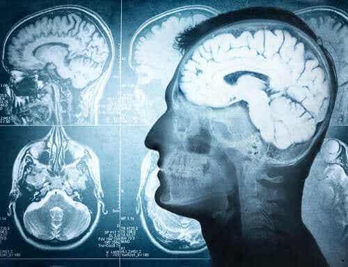 Delen van de hersenen en hun functies
