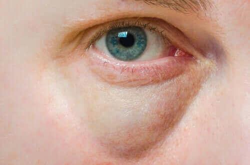 Oorzaken van gezwollen oogleden en behandelingen
