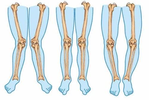 Verschillende soorten benen