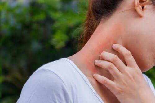 De link tussen dermatitis en corticosteroïden