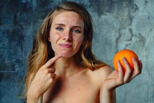 Behandeling en symptomen van een citrusallergie