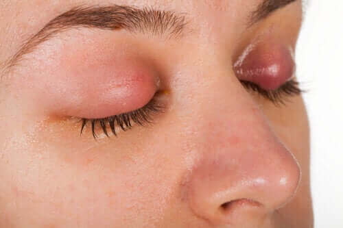 Symptomen en behandeling van een ooglidontsteking
