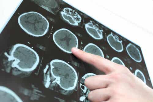 De verschillen tussen een CT-scan en een MRI