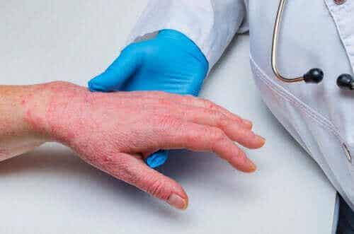 Psoriasis en coronaire hartziekte: zijn ze gerelateerd?