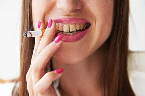 Rokersmelanose is een van de gevaren van roken