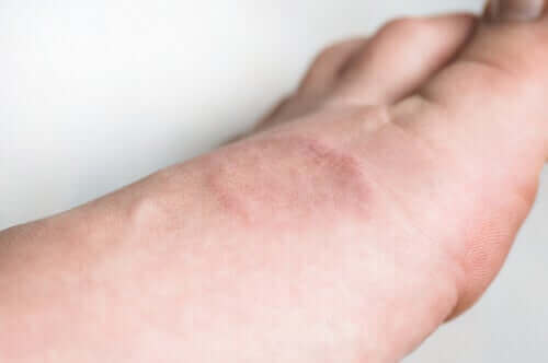Symptomen en behandeling van granuloma annulare