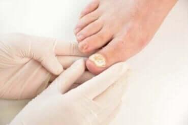 7 manieren om schimmelnagelinfecties te voorkomen